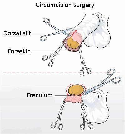 Circumcision_illustration